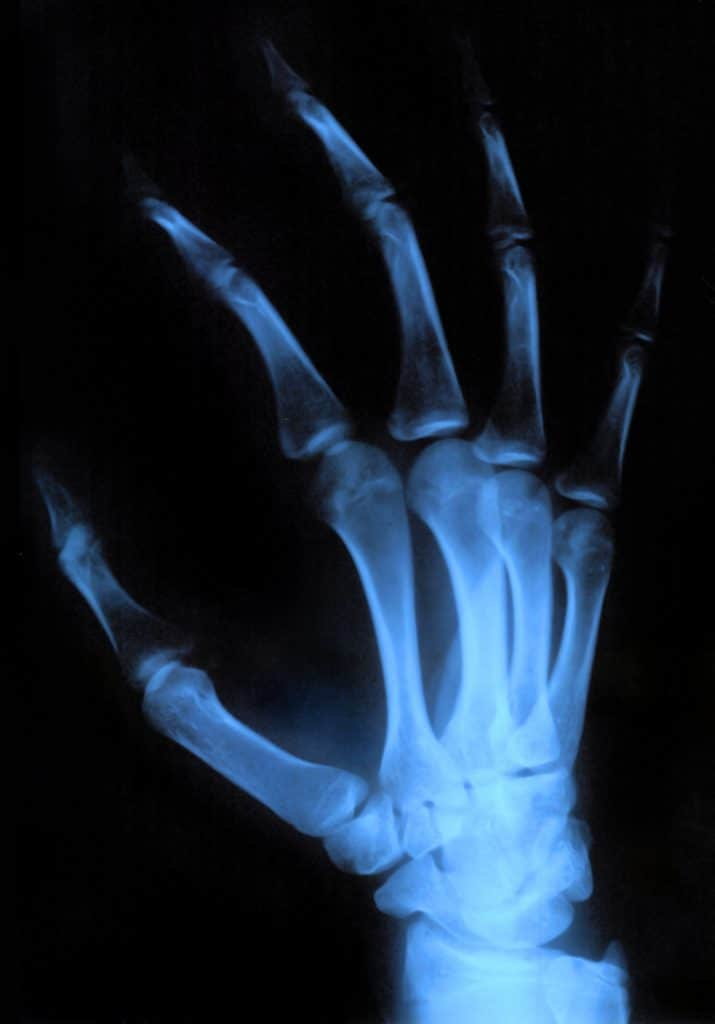 x-ray image of a patients hand